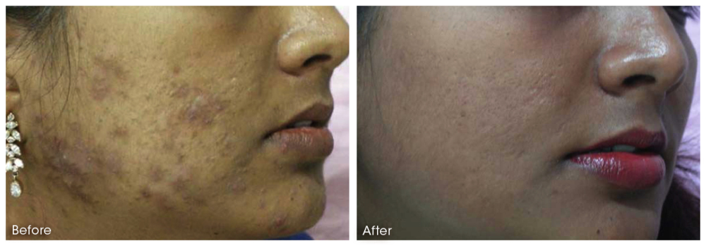Dermaroller: Hyper pigmentation Before & After