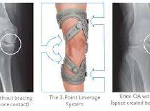 Knee OA? Ligament injuries? Custom and off the shelf braces expertly measured and fit!