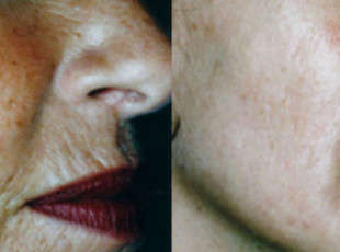 Dermaroller - Wrinkles Before & After